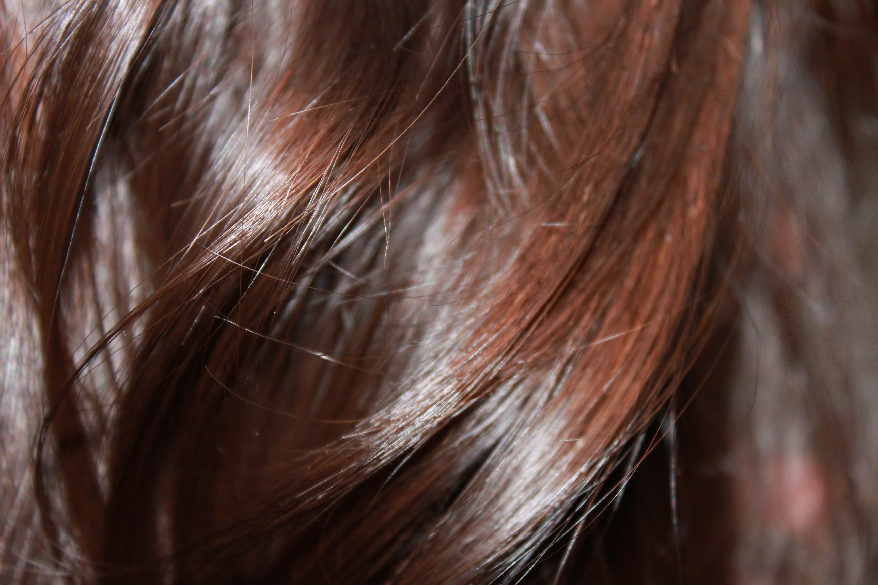Si pueden caer los cabellos de las enfermedades cutáneas